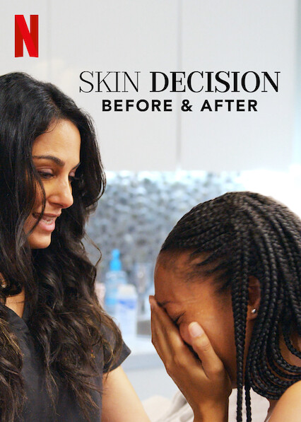 Skin Decision: Before and After sur Netflix USA